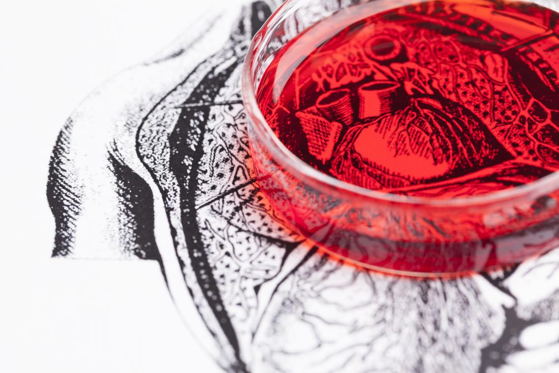 Heart in a red petri dish