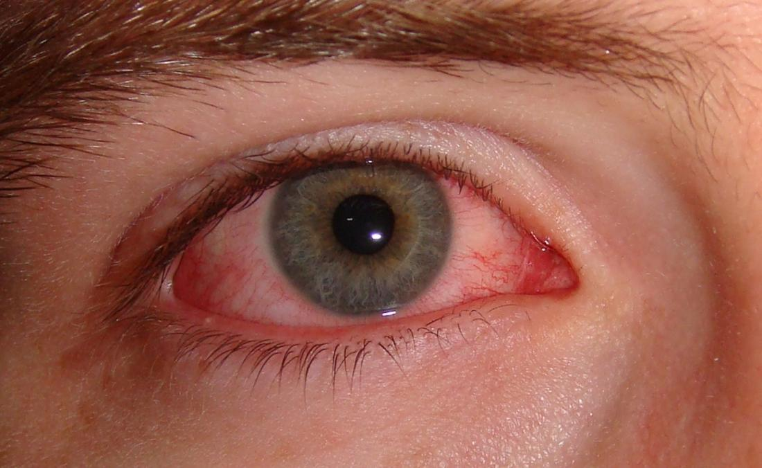 Grass, dust, and tree pollen may cause allergic pink eye. <br>Image credit: P33tr, 2007