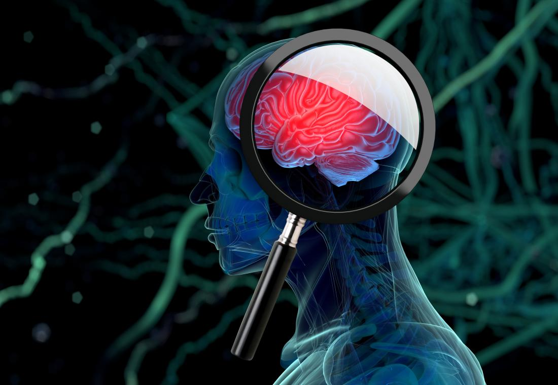 illustration of brain with magnifying glass