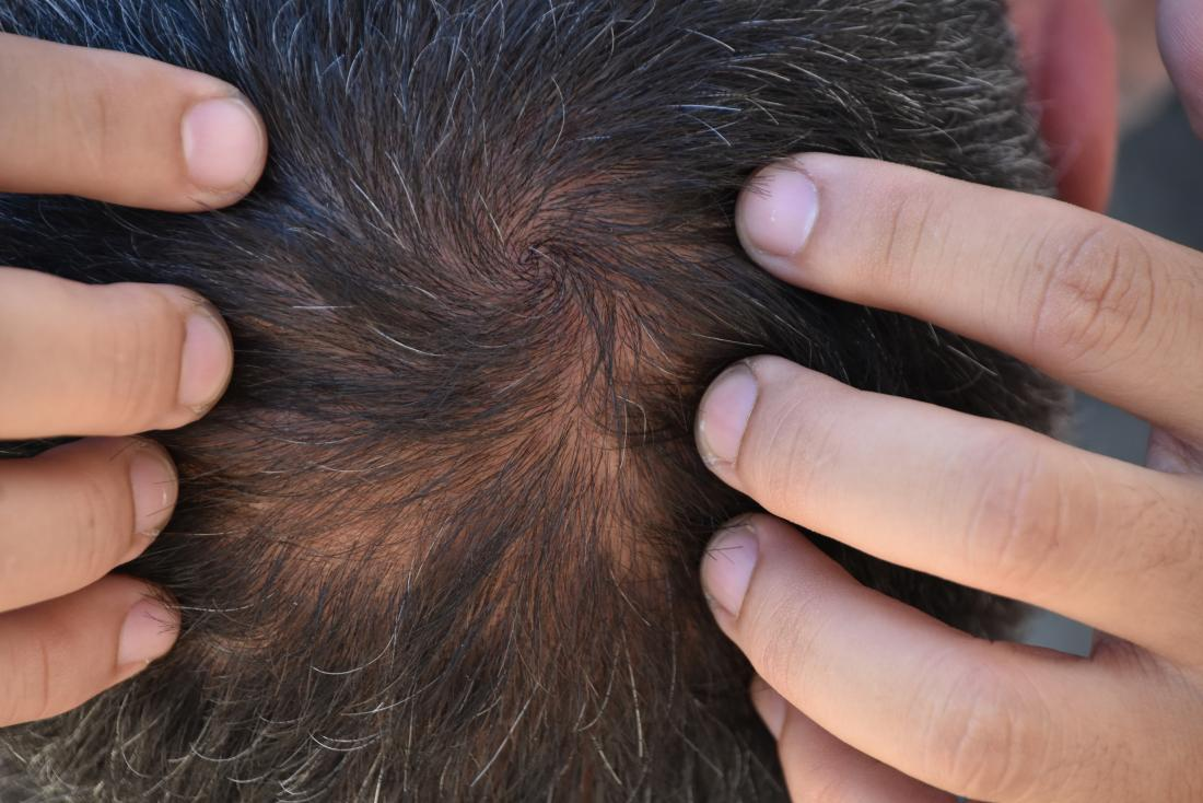 Doctor examining scalp for telogen effluvium