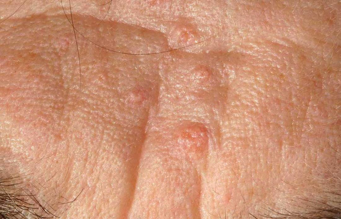 Sebaceous hyperplasia on forehead of person.