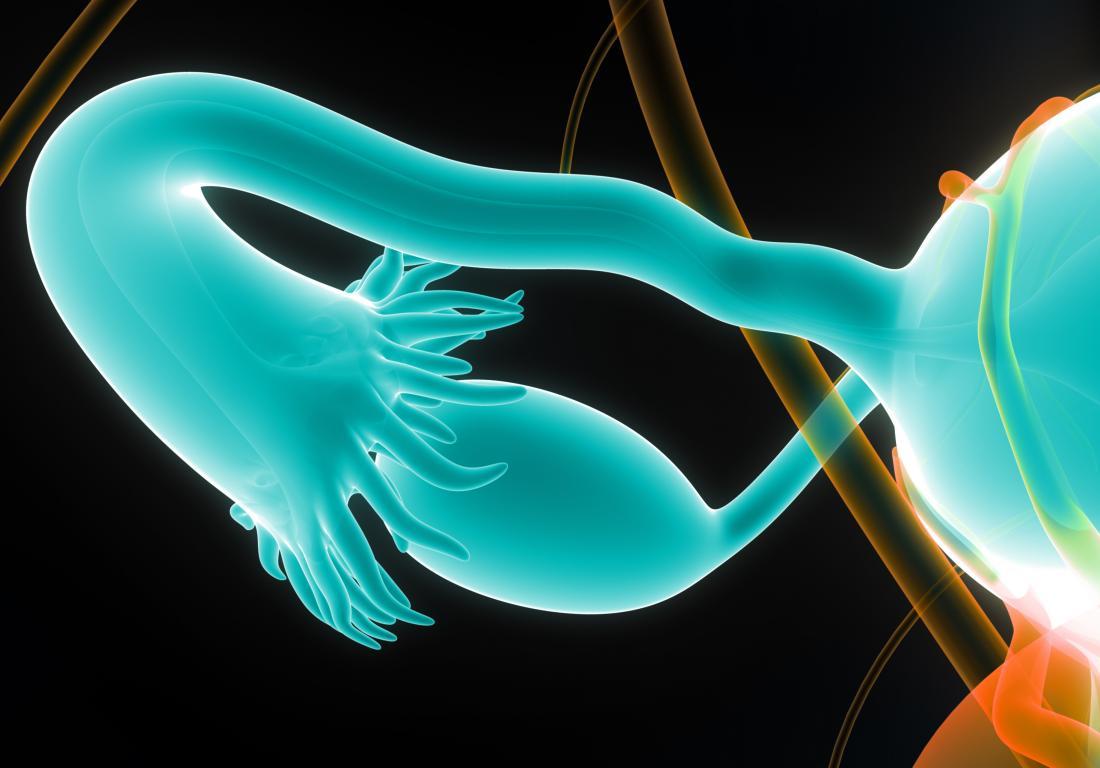 Fallopian tube 3D render to represent blocked fallopian tubes.