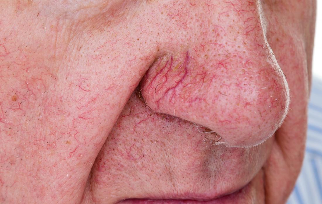 Broken blood vessels or spider veins on old mans nose.
