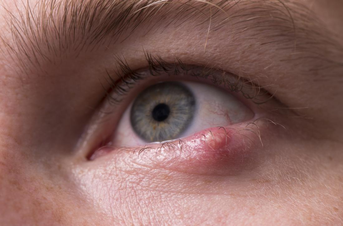 A stye on the eyelid