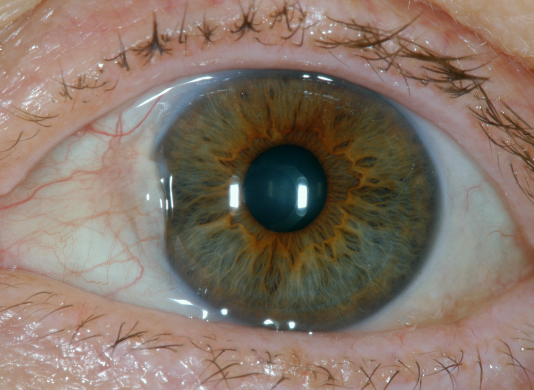 pterygium is a cause of bump on the eyeball <br>Image credit: Sciencia58, 2017</br>