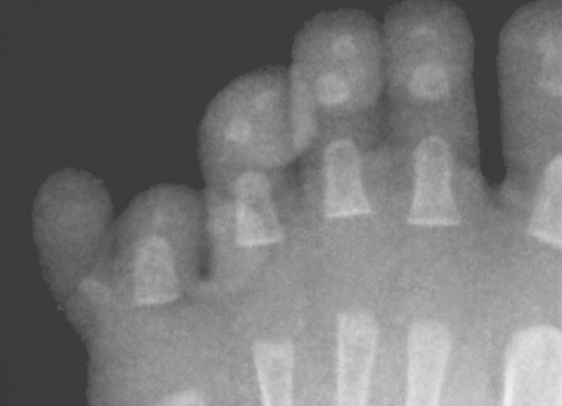 X-ray of Ulnar polydactyly in toes. Image credit: Hellerhoff, (2011, January).