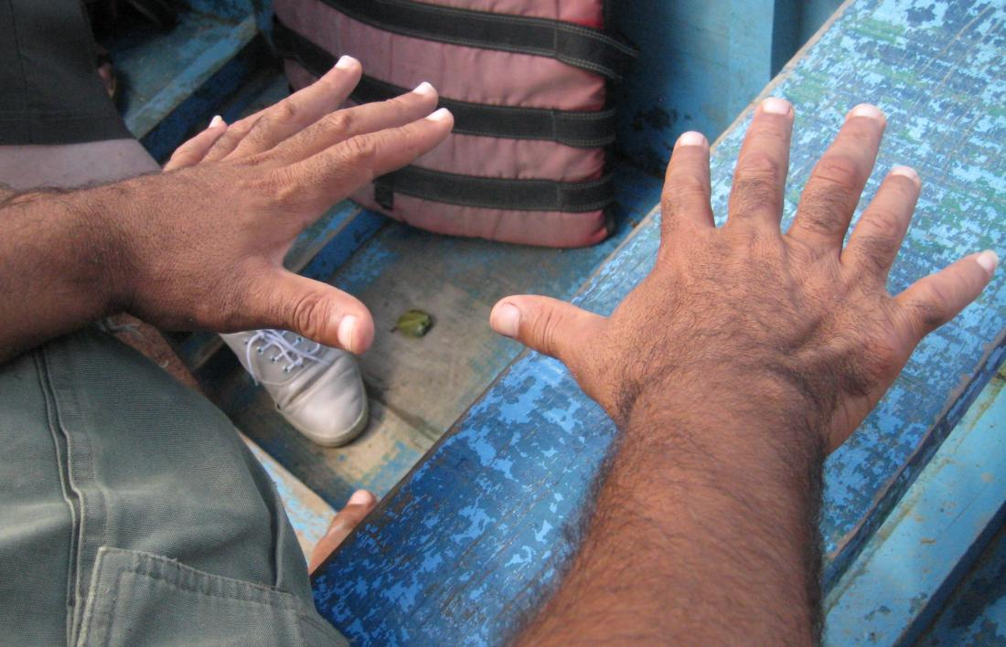 Central polydactyly causing person to have six fingers. Image credit: Wilhelmy, (2014, March 2).