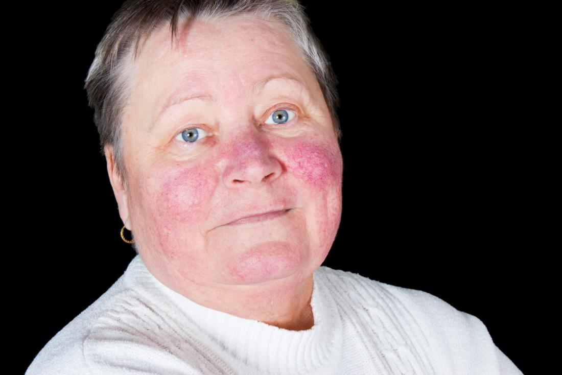Malar rash on face