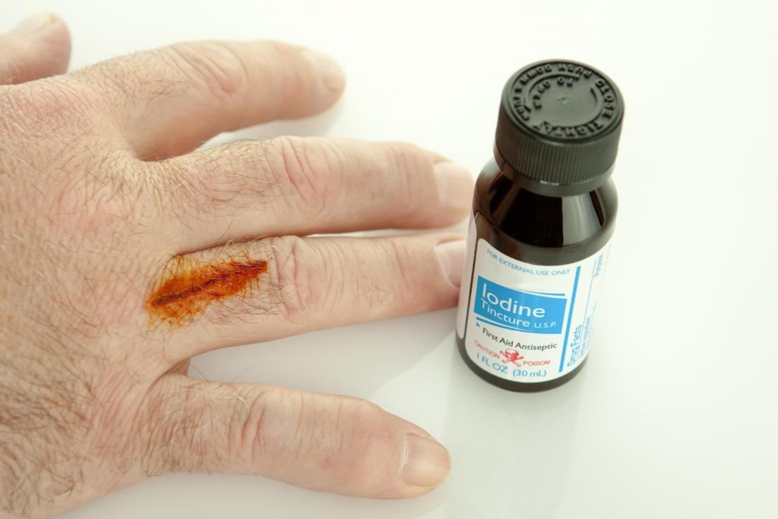 Using Iodine on a cut that may have an iodine allergy