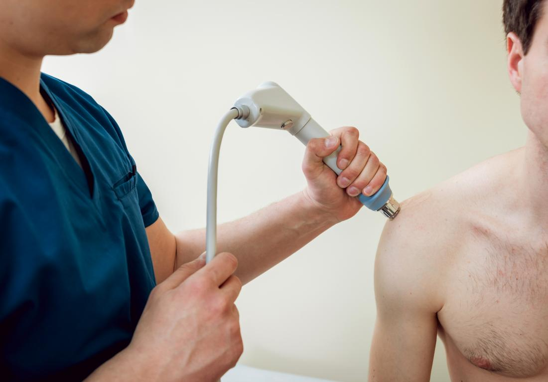 shock therapy for calcific tendonitis