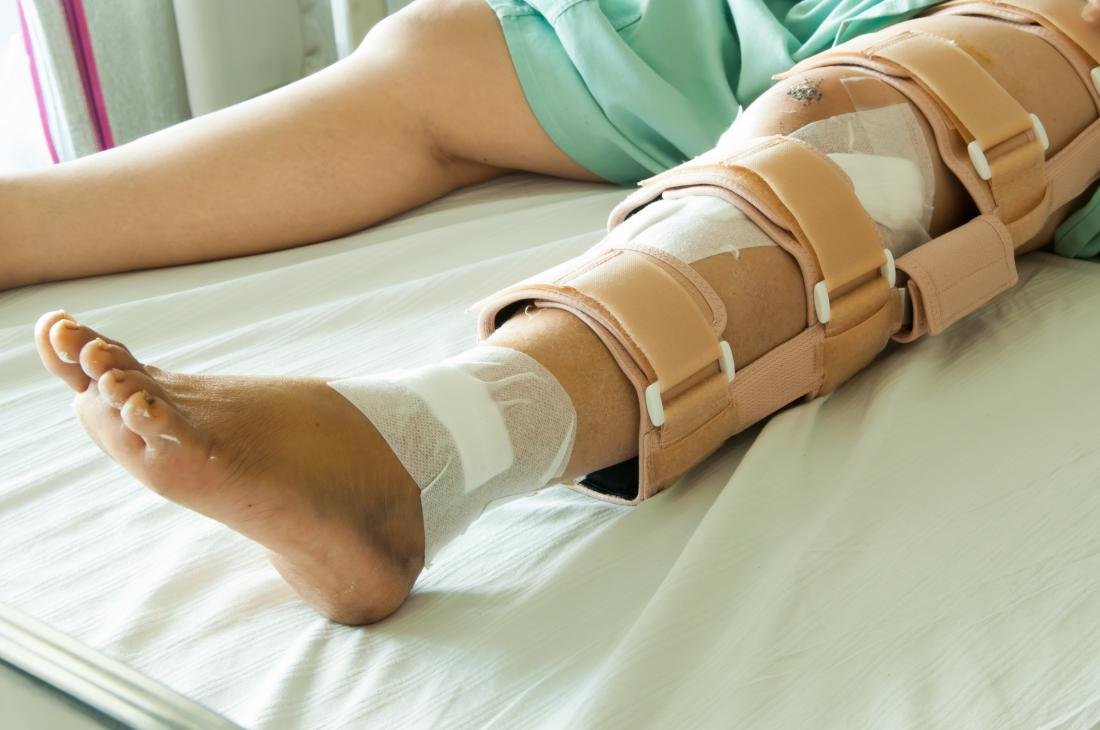 Person with broken leg lying on hospital bed with brace and bandages