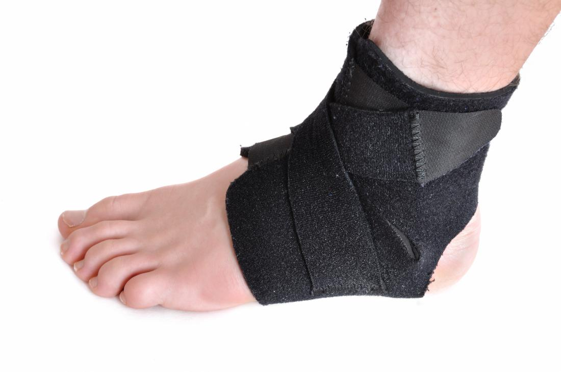 Foot brace for a person with cuboid syndrome