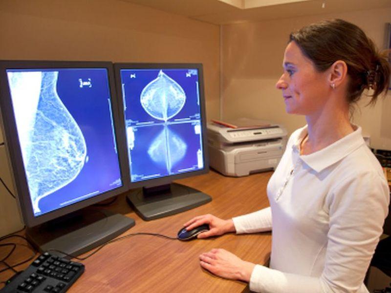 News Picture: Breast Cancer Patients May Shorten Herceptin Regimen: Study