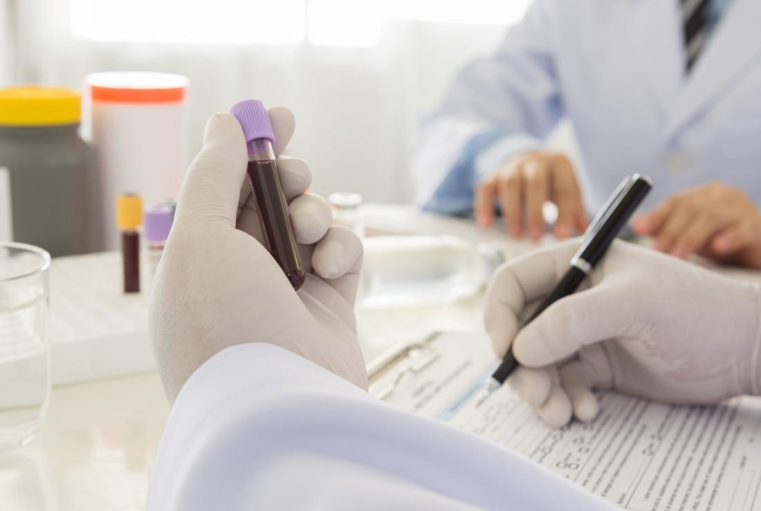 Blood sample being tested by lab technician.