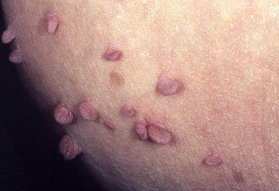 skin tags on the anus