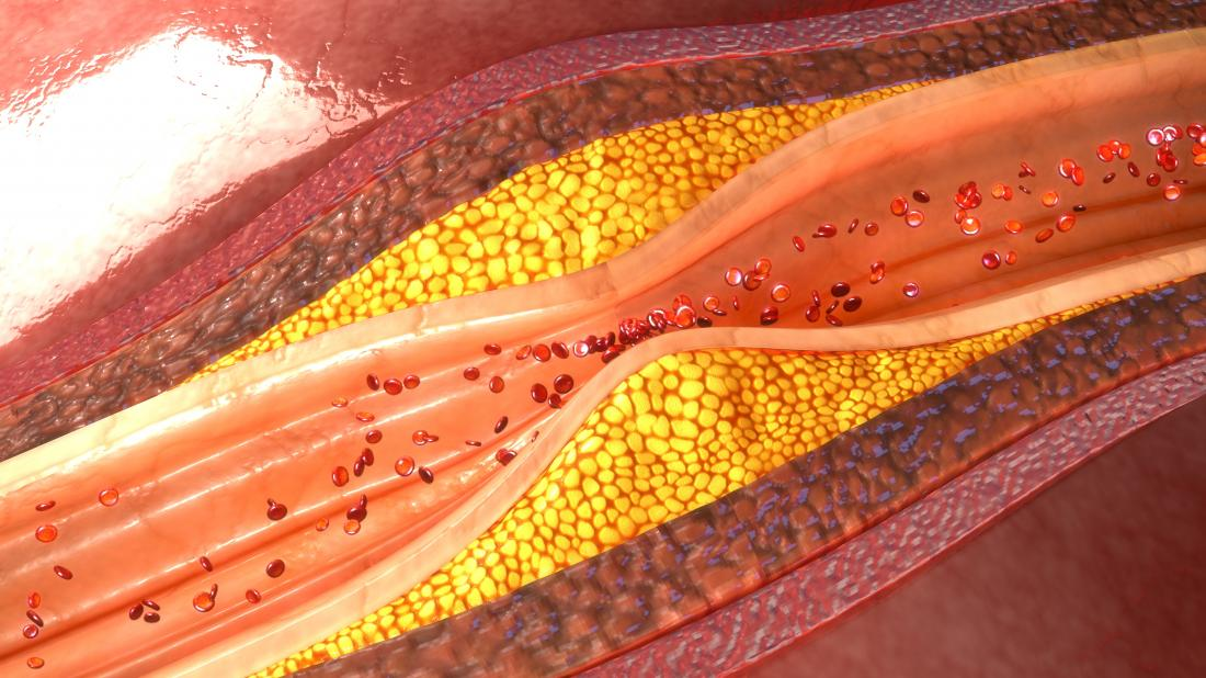 plaque build up inside of arteries