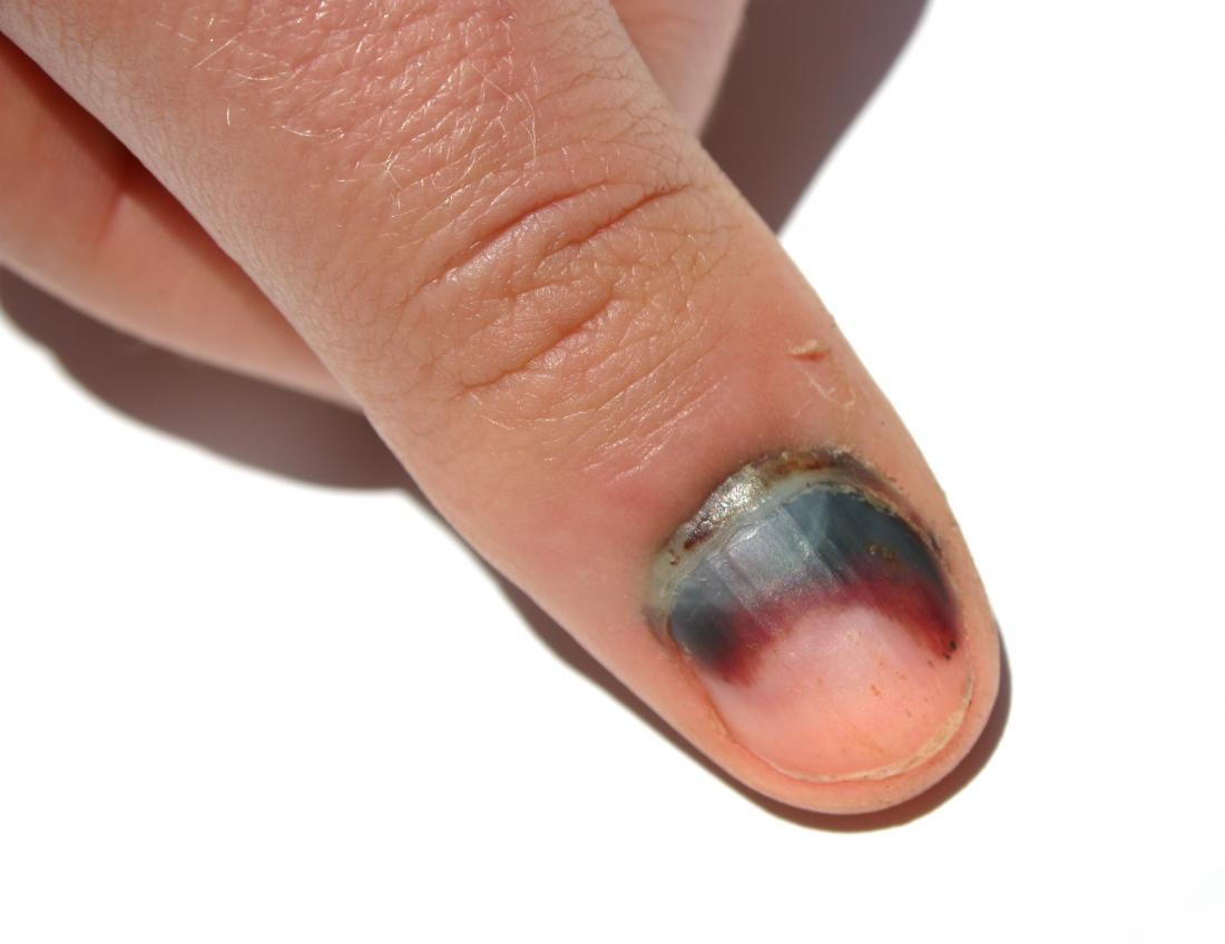 Subungual hematoma on fingernail