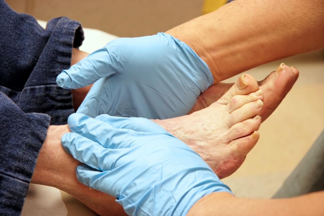 Doctor examining a patients feet for plantar fibroma