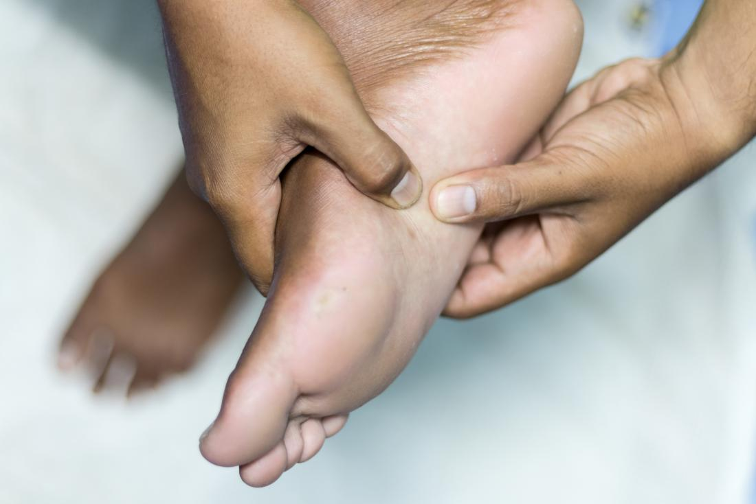 Person holding their foot due to plantar fibroma