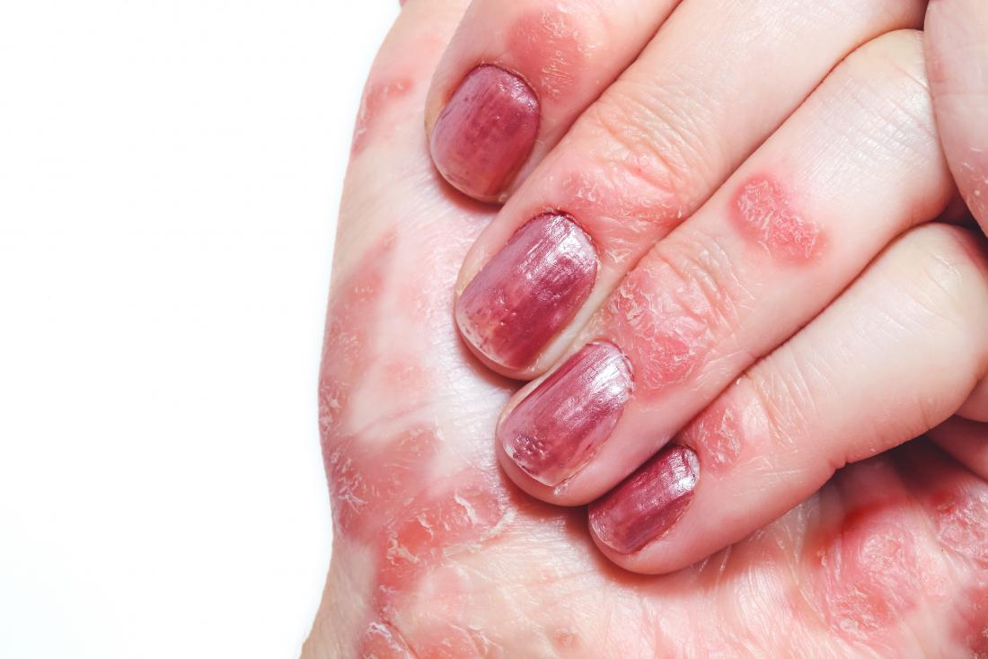 Psoriasis on fingers and hands.