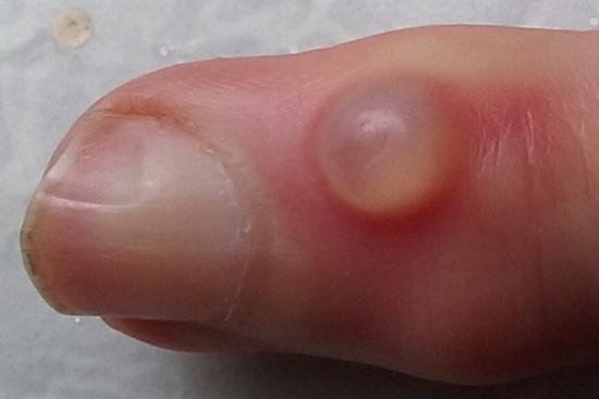Digital mucous cyst. Image credit: Huge, (2015, November 18).