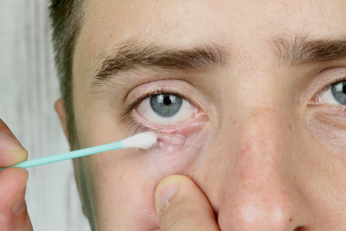 Man using a cotton swab on his eye to treat D. folliculorum mite