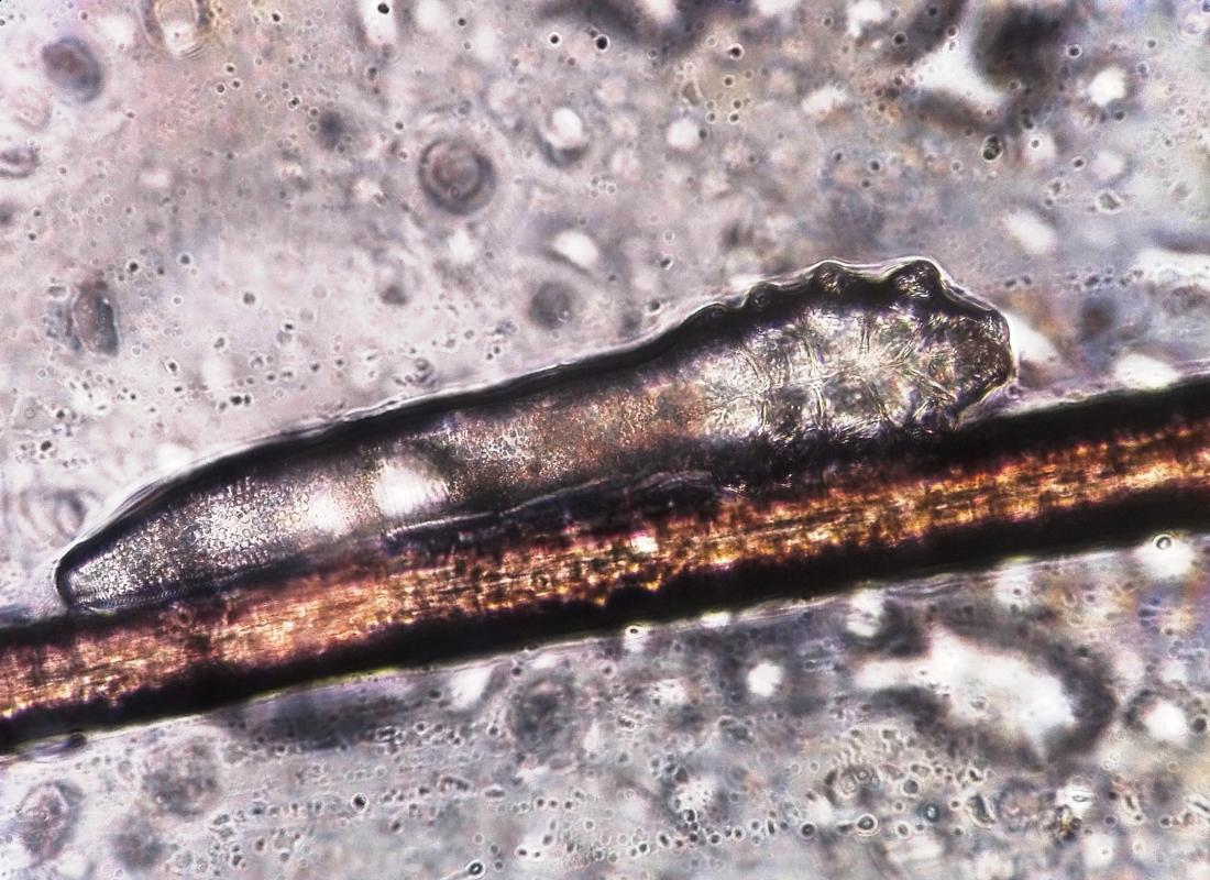magnified image of the Demodex folliculorum mite <br>Image credit: Vladimir064, 2017</br>