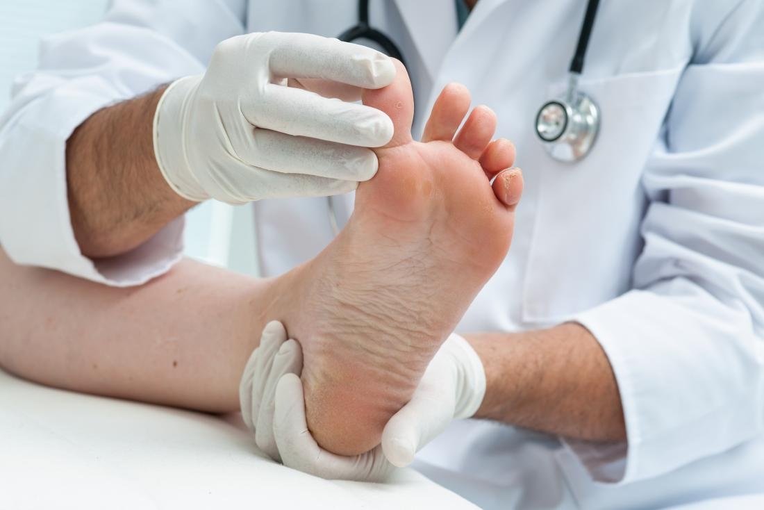 Doctor looking at skin peeling between toes of patient.