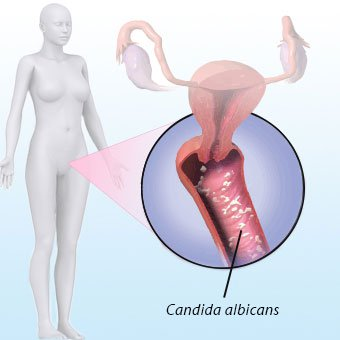 A picture shows <i>Candida albicans</i>, which is responsible for over 90% of vaginal yeast infections.