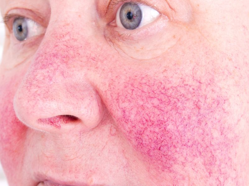 News Picture: Could You Have Rosacea?