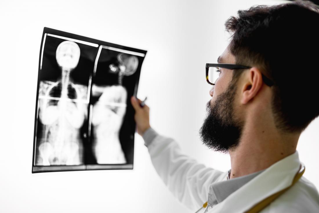 Man checking X-ray