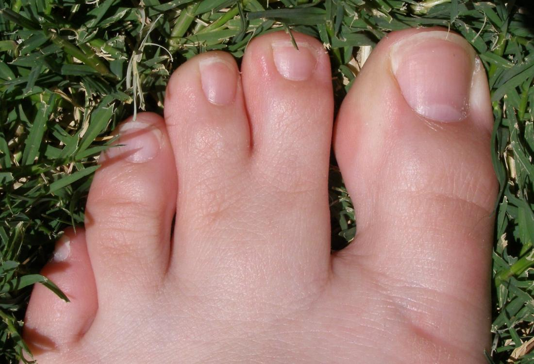 Human foot with partial simple syndactyly., or webbed toes. Image credit: pschemp, (2006, July 22).