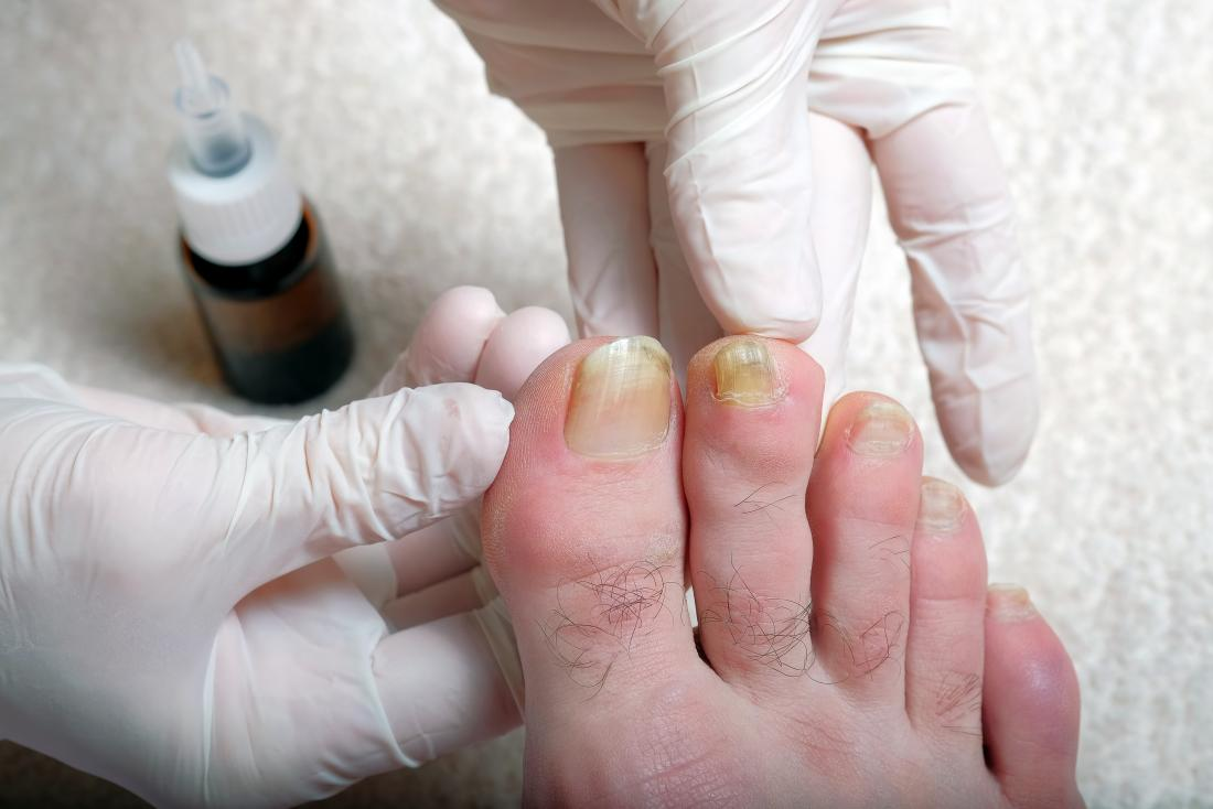 Yellow toenails being inspected by someone with gloved hands.