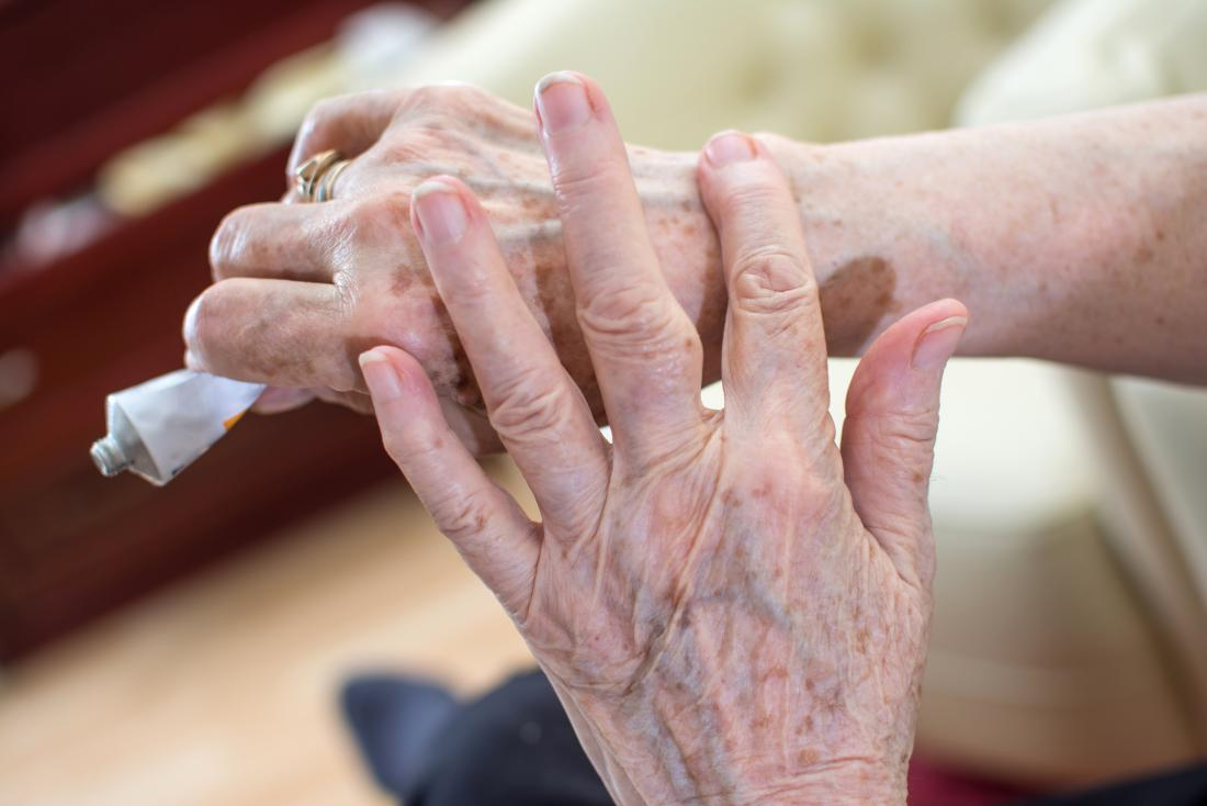 Senior woman applying hand cream or medical lotion to back of wrist.