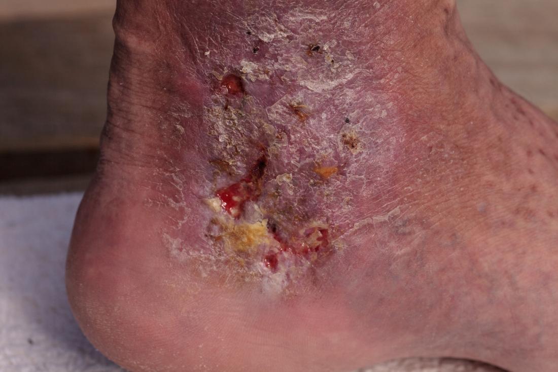 skin redness cellulitis