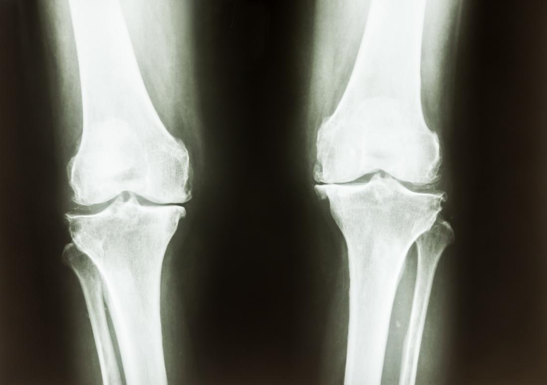 X-ray knees