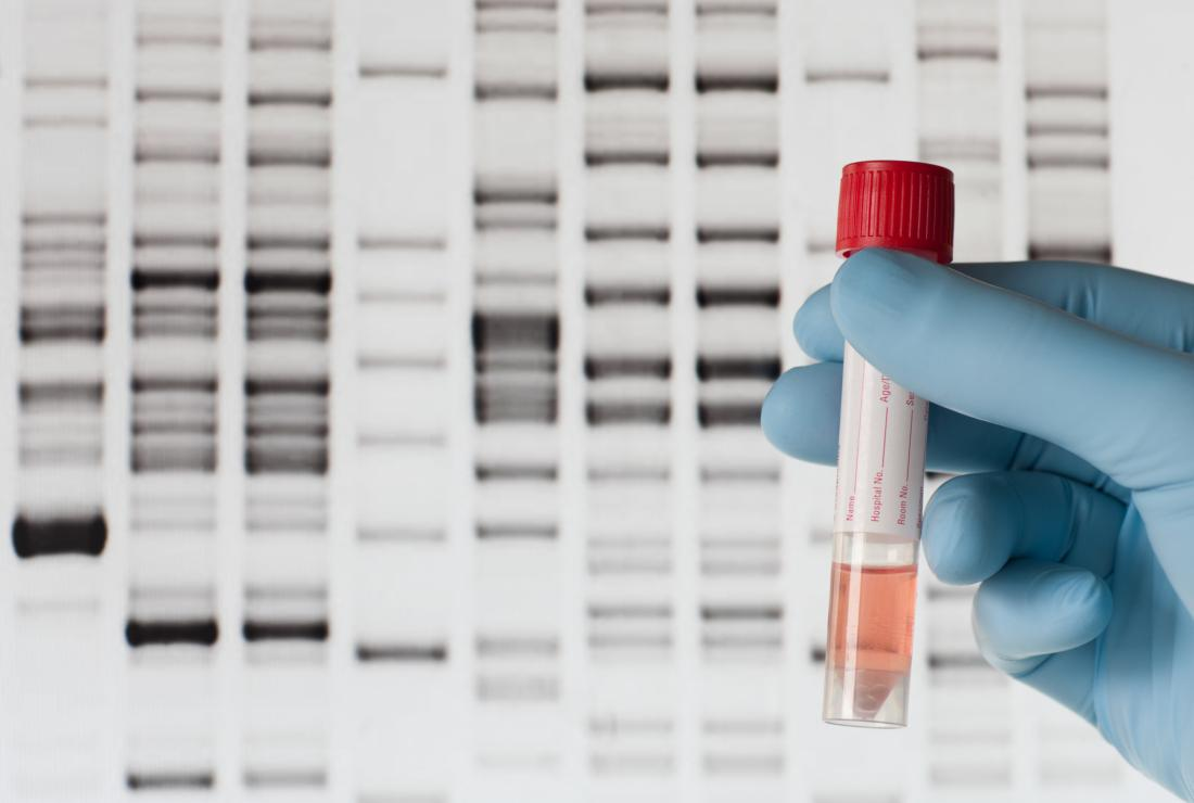 Blood sample being used for DNA testing,