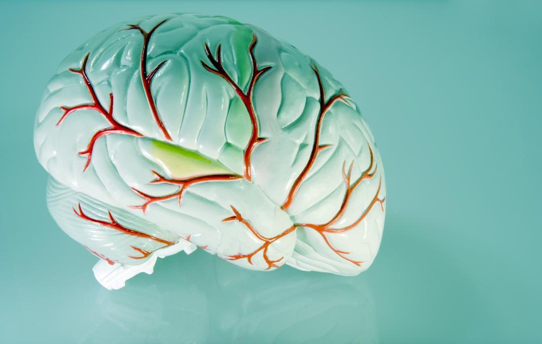 model of brain vessels