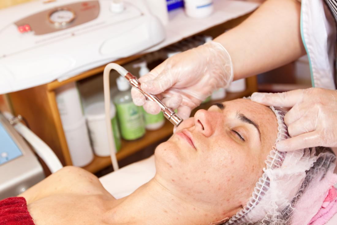 dermabrasion being performed on womans face