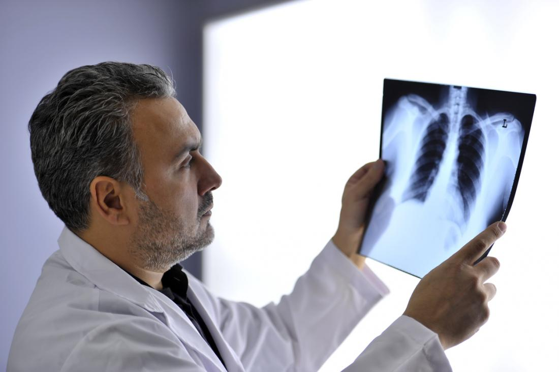 doctor looking at x ray of the chest