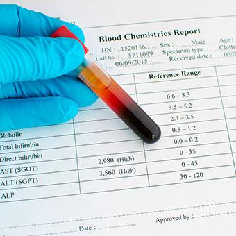 Blood test result