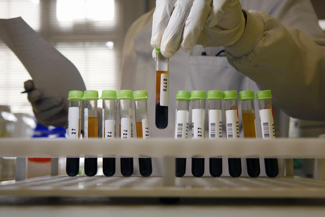 Blood samples for testing being organised by lab technician