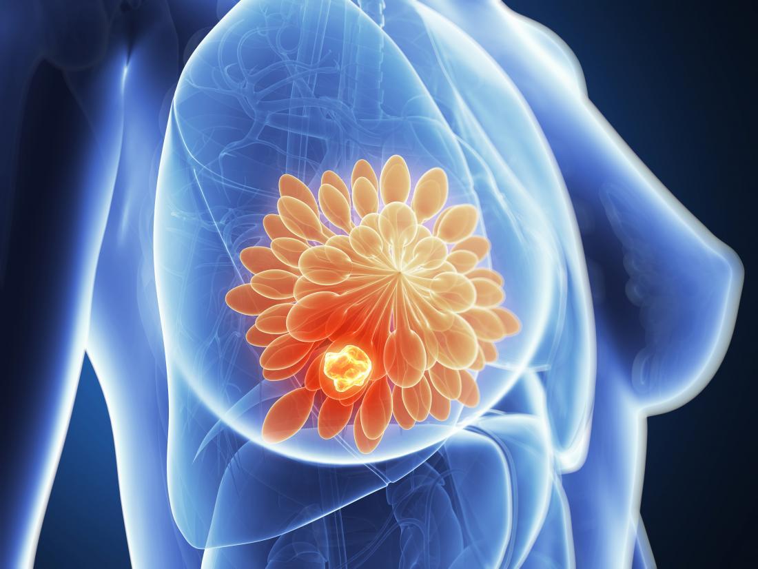 breast cancer tumor illustration