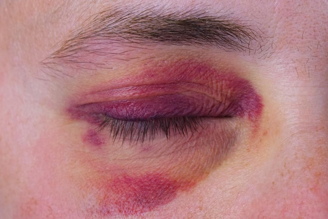 Broken eye socket causing bruising around the eye