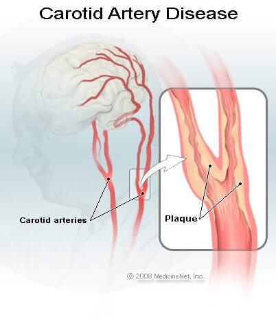 Picture of Carotid Artery Disease
