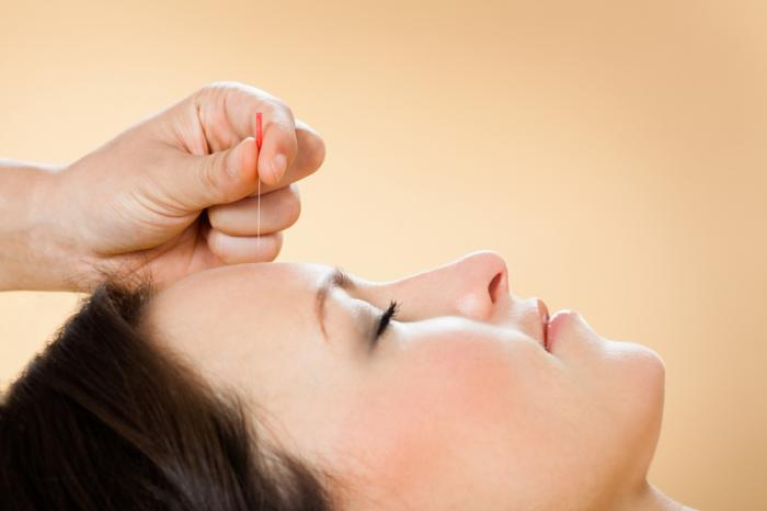 [acupuncture for headache]