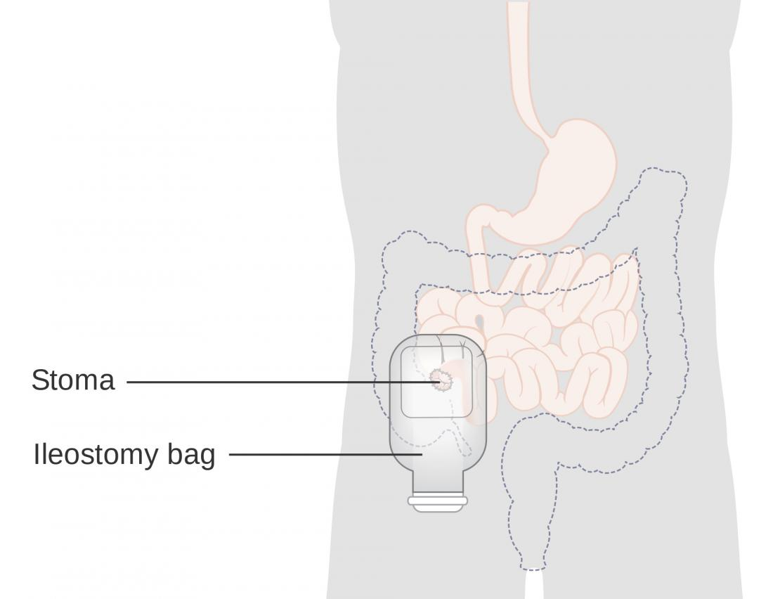 Proctocolectomy and ileostomy diagram. Image credit: Cancer Research UK, 2014