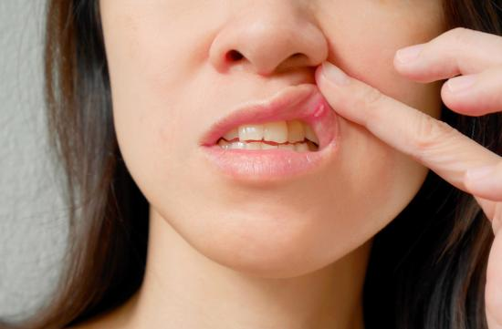 Woman pushing her upper lip to reveal canker sore, or mouth ulcer.