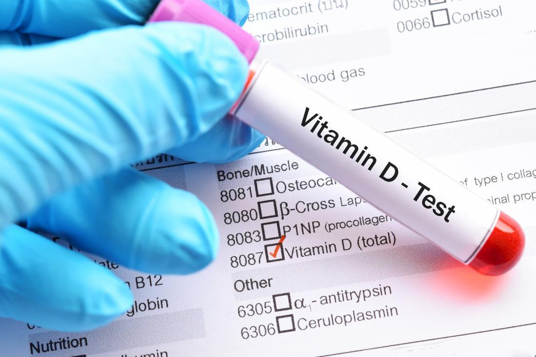 hand holding vitamin d test vial