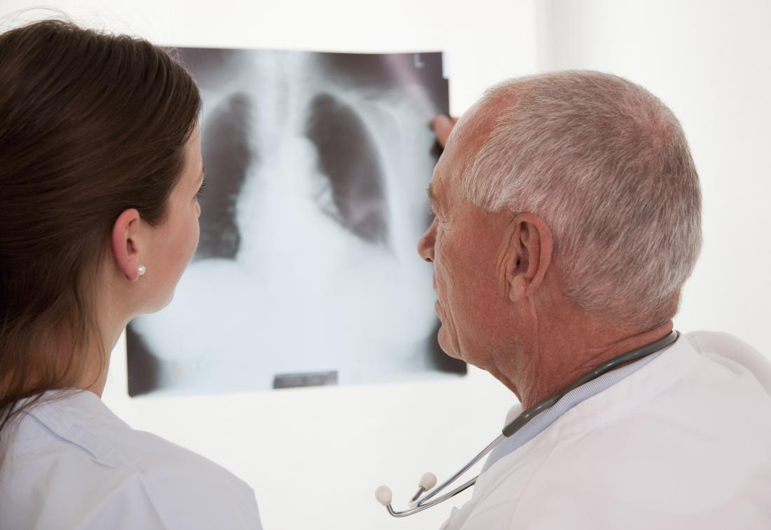 Doctor and COPD patient looking at x-ray of lungs.